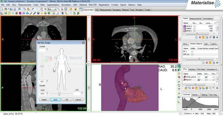 Materialise Mimics Innovation Suite 21 Free Download